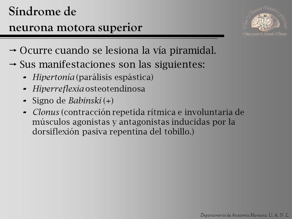 Síndrome de neurona motora superior