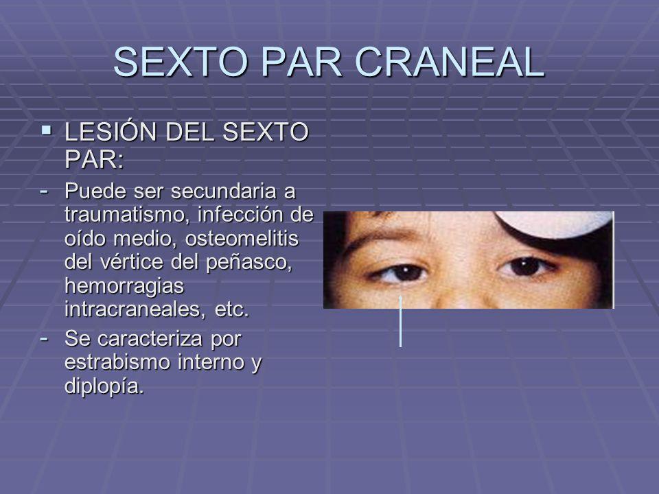 SEXTO PAR CRANEAL LESIÓN DEL SEXTO PAR: