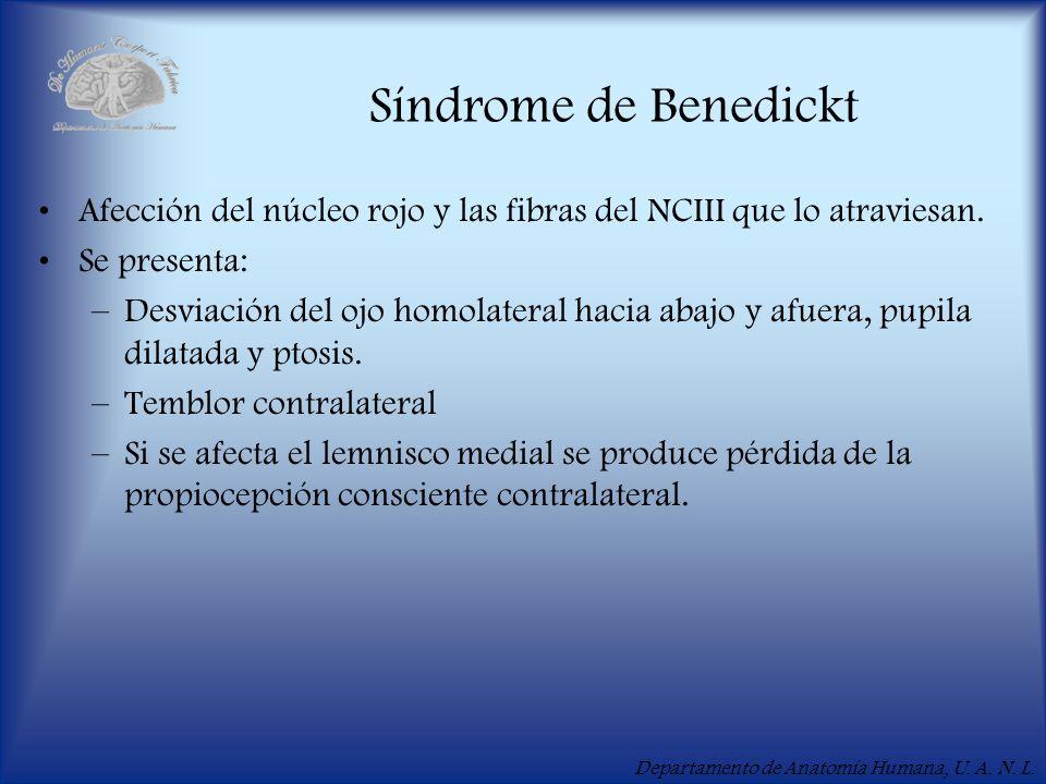 Síndrome de Benedickt Afección del núcleo rojo y las fibras del NCIII que lo atraviesan. Se presenta: