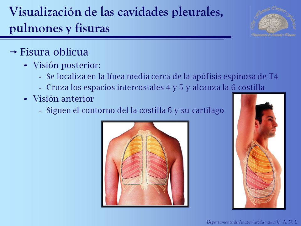 Visualización de las cavidades pleurales, pulmones y fisuras