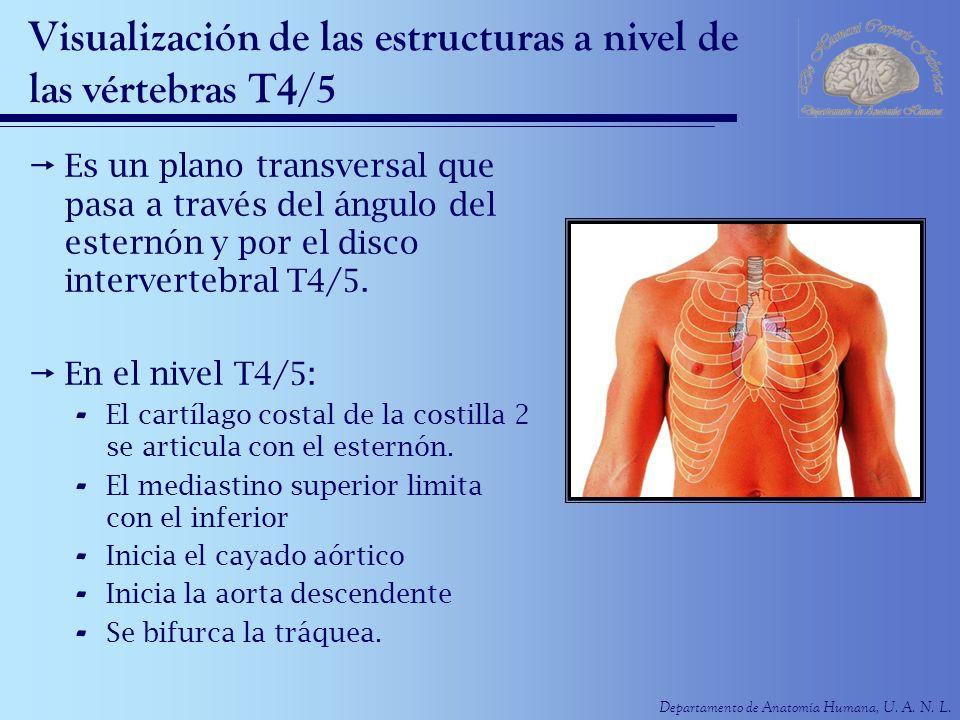Visualización de las estructuras a nivel de las vértebras T4/5