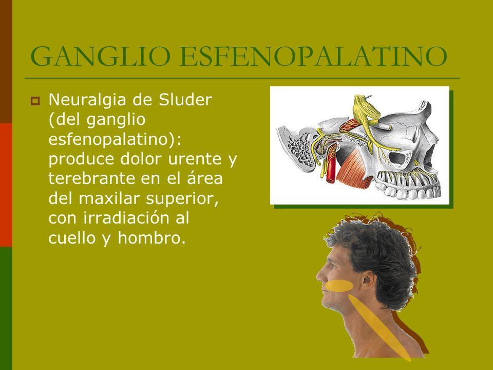 GANGLIO ESFENOPALATINO