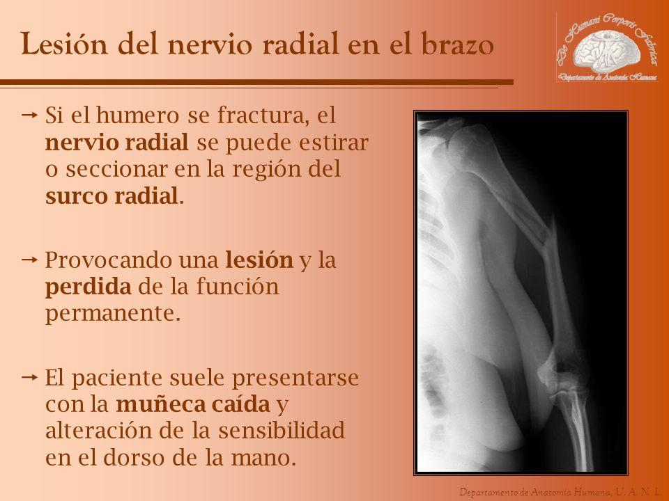 Lesión del nervio radial en el brazo