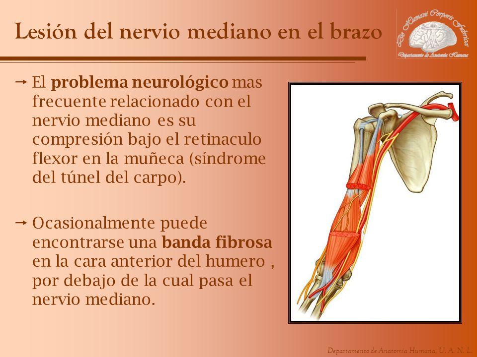 Lesión del nervio mediano en el brazo