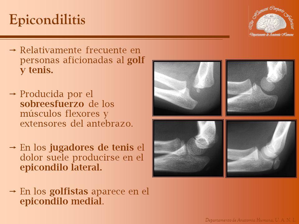 Epicondilitis Relativamente frecuente en personas aficionadas al golf y tenis.