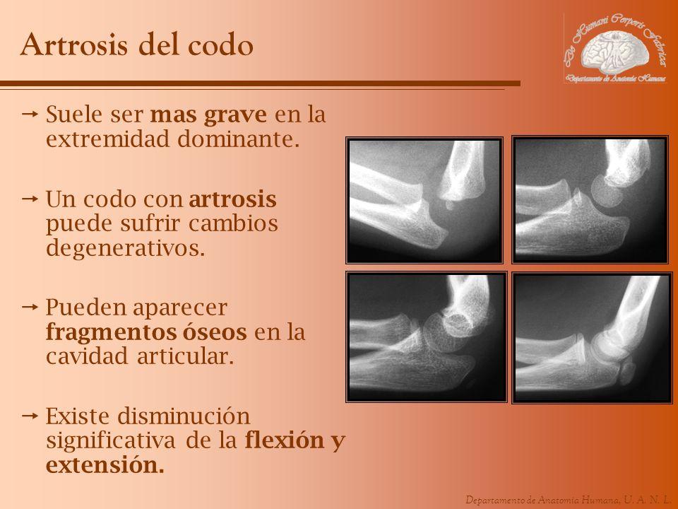 Artrosis del codo Suele ser mas grave en la extremidad dominante.
