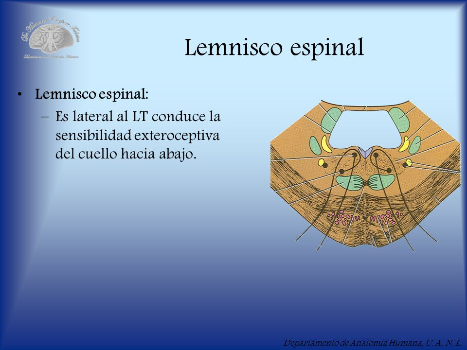 Lemnisco espinal Lemnisco espinal: