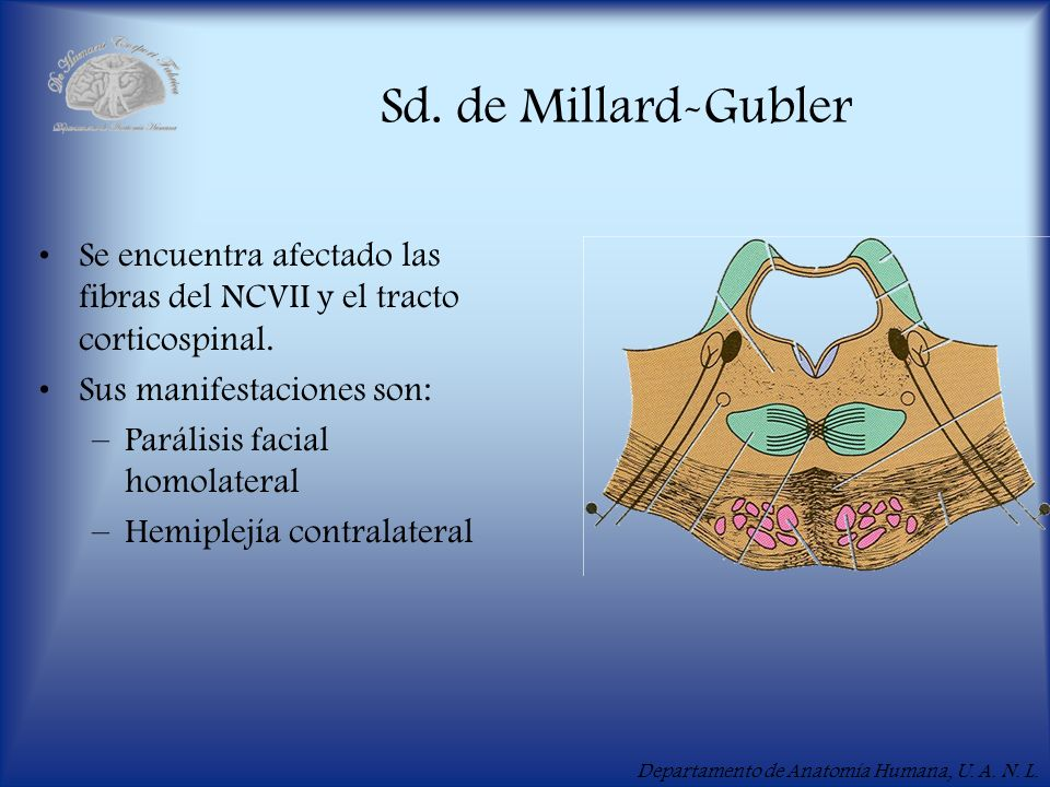 Sd. de Millard-GublerSe encuentra afectado las fibras del NCVII y el tracto corticospinal. Sus manifestaciones son: