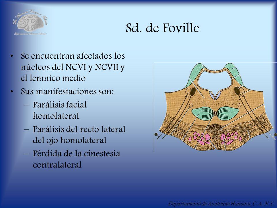 Sd. de FovilleSe encuentran afectados los núcleos del NCVI y NCVII y el lemnico medio. Sus manifestaciones son: