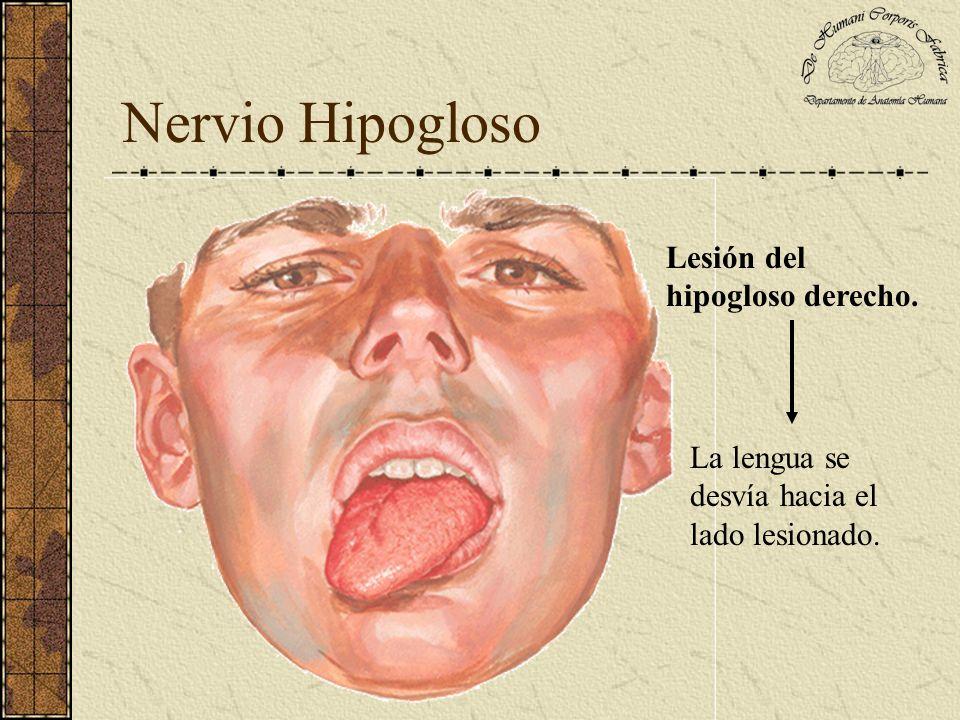 Nervio Hipogloso Lesión del hipogloso derecho.