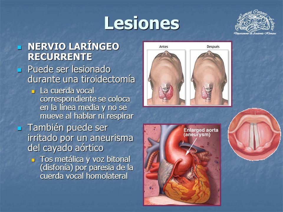 Lesiones NERVIO LARÍNGEO RECURRENTE