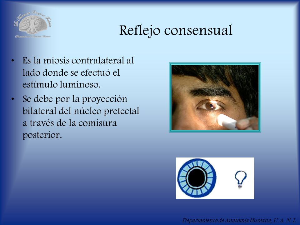 Reflejo consensual Es la miosis contralateral al lado donde se efectuó el estímulo luminoso.