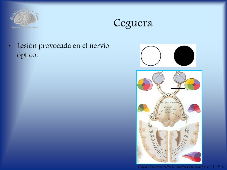 Ceguera Lesión provocada en el nervio óptico.