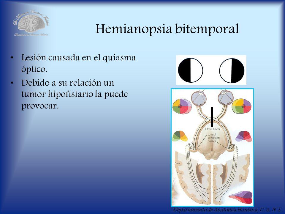 Hemianopsia bitemporal