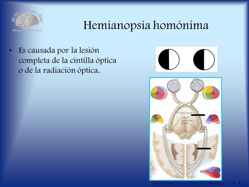 Hemianopsia homónima Es causada por la lesión completa de la cintilla óptica o de la radiación óptica.