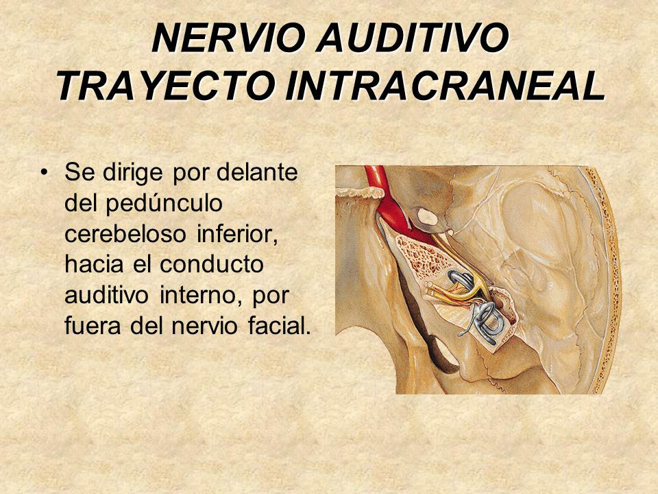 NERVIO AUDITIVO TRAYECTO INTRACRANEAL