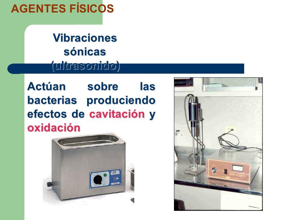 Vibraciones sónicas (ultrasonido)
