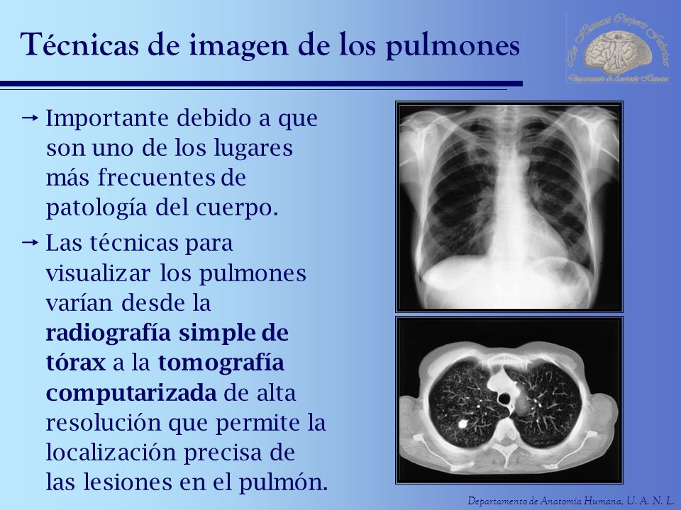 Técnicas de imagen de los pulmones