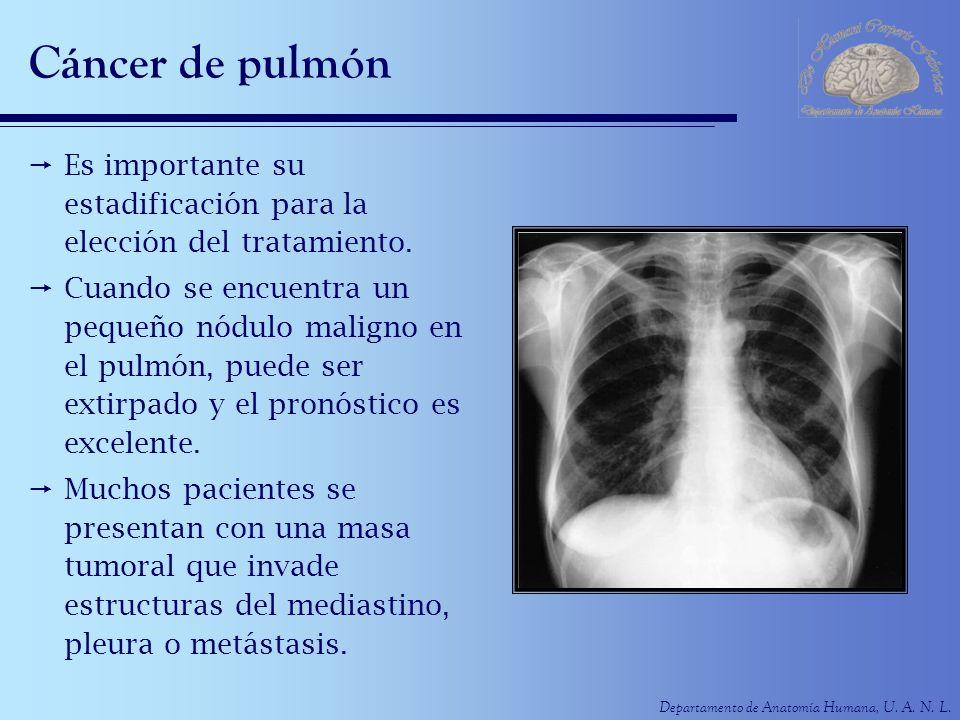 Cáncer de pulmón Es importante su estadificación para la elección del tratamiento.