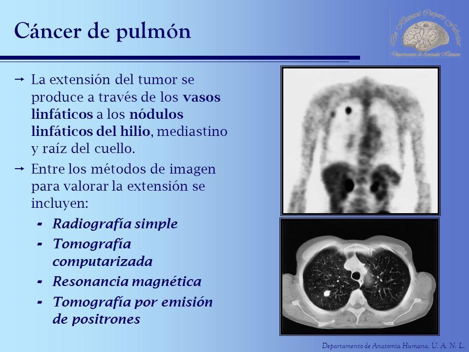 Cáncer de pulmón La extensión del tumor se produce a través de los vasos linfáticos a los nódulos linfáticos del hilio, mediastino y raíz del cuello.