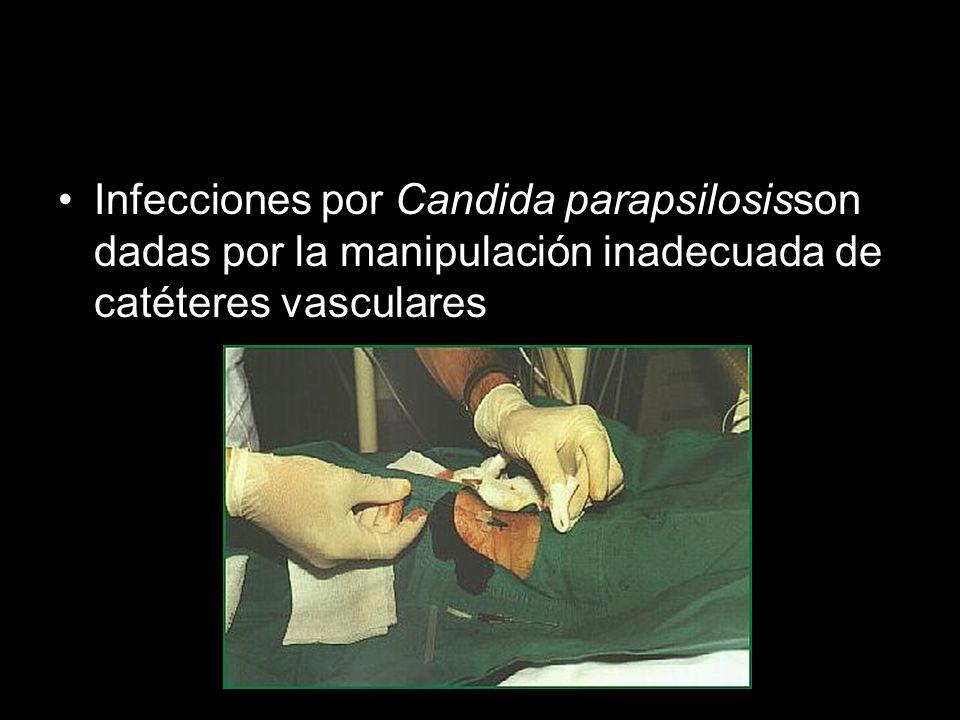 Infecciones por Candida parapsilosisson dadas por la manipulación inadecuada de catéteres vasculares