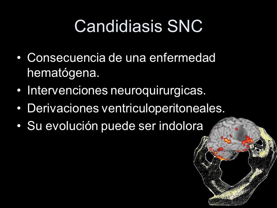 Candidiasis SNC Consecuencia de una enfermedad hematógena.