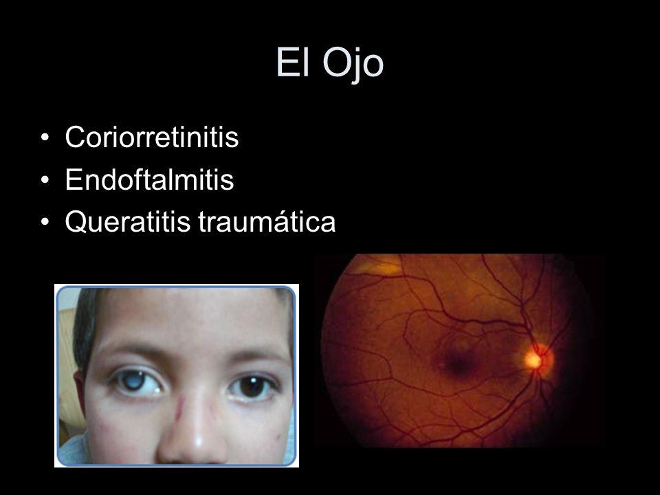 El Ojo Coriorretinitis Endoftalmitis Queratitis traumática