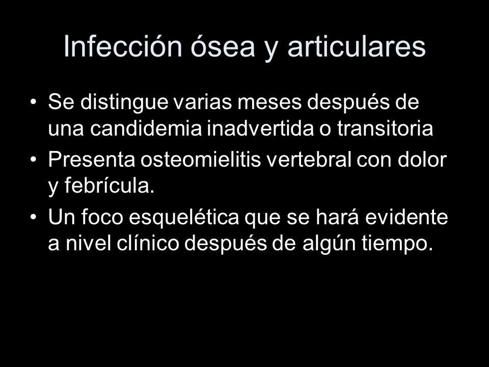 Infección ósea y articulares