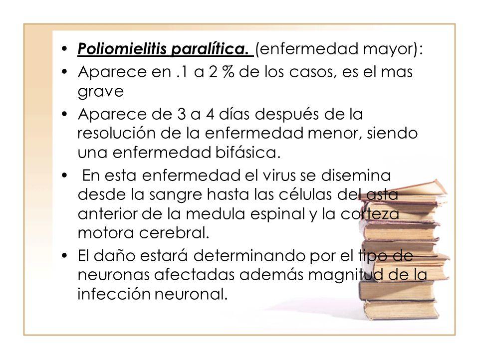 Poliomielitis paralítica. (enfermedad mayor):