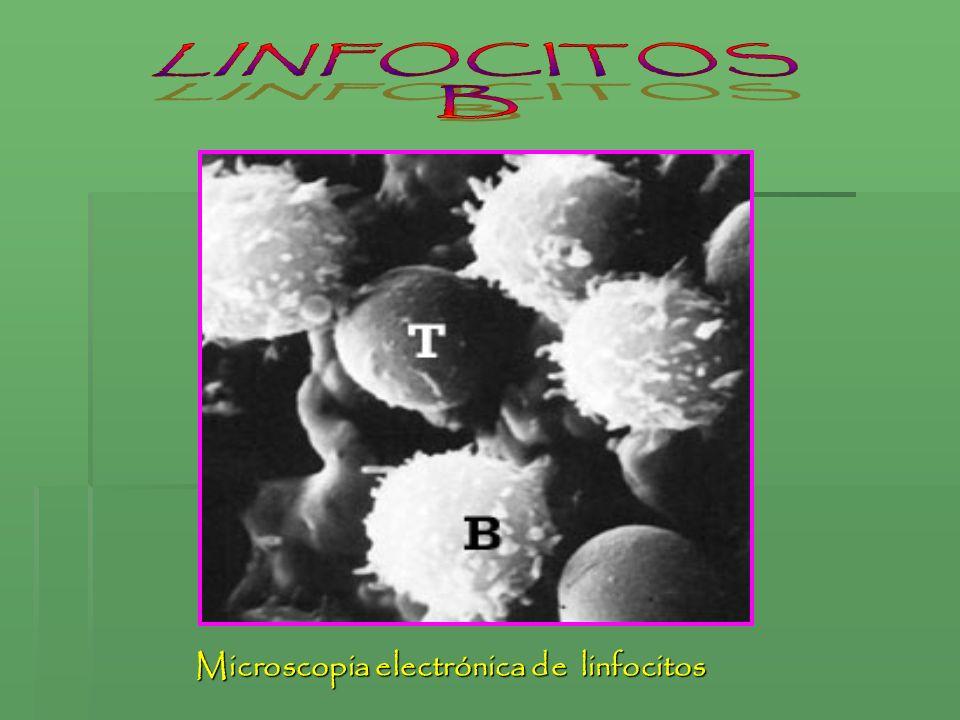LINFOCITOS B Microscopia electrónica de linfocitos