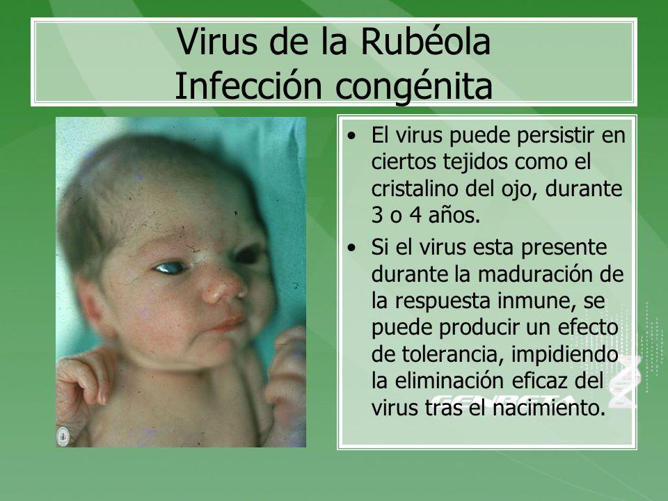Virus de la Rubéola Infección congénita