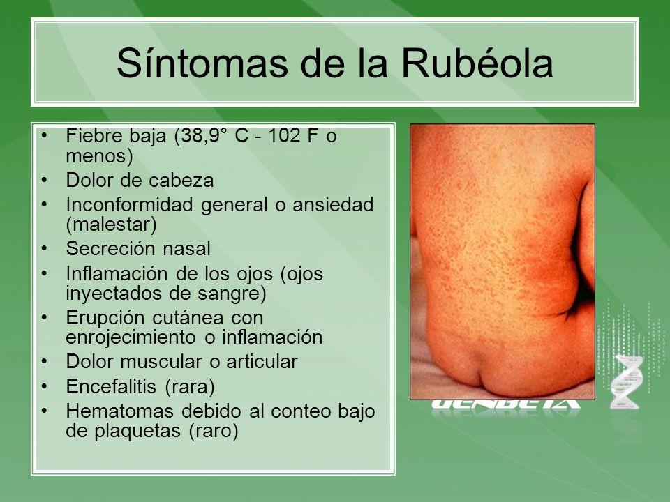 Síntomas de la Rubéola Fiebre baja (38,9° C - 102 F o menos)