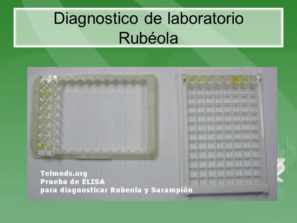 Diagnostico de laboratorio Rubéola
