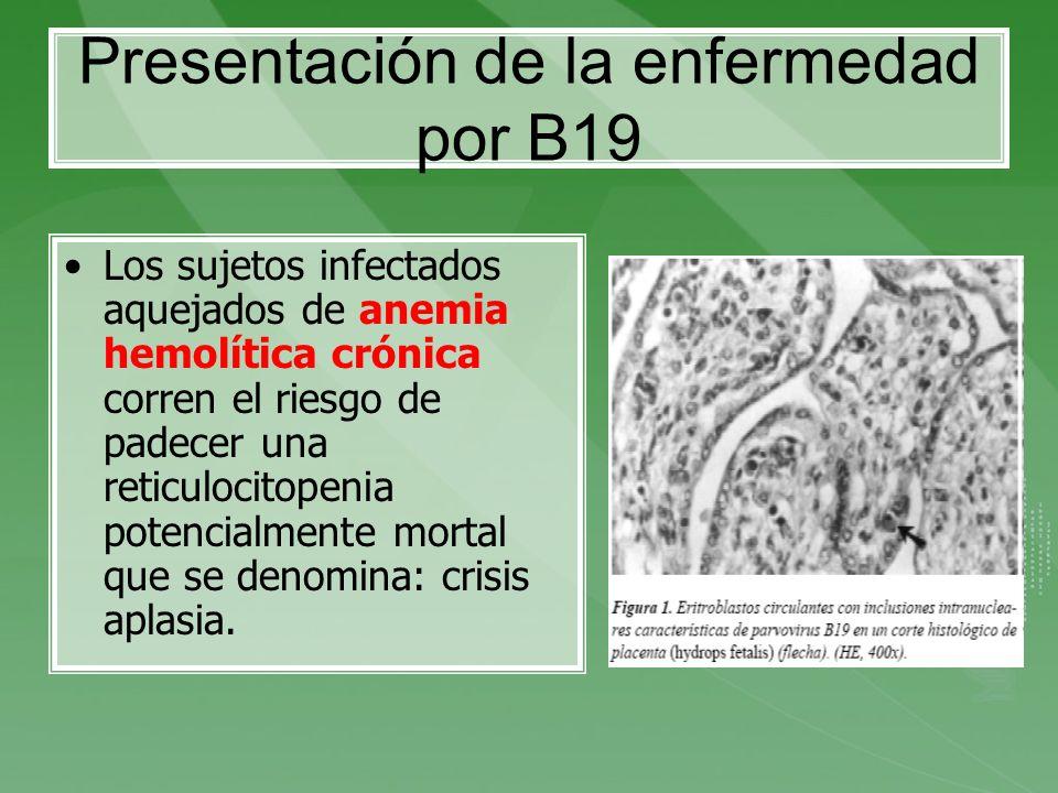 Presentación de la enfermedad por B19