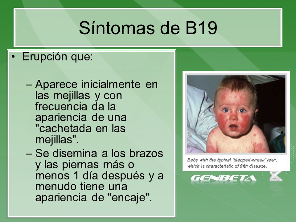Síntomas de B19 Erupción que: