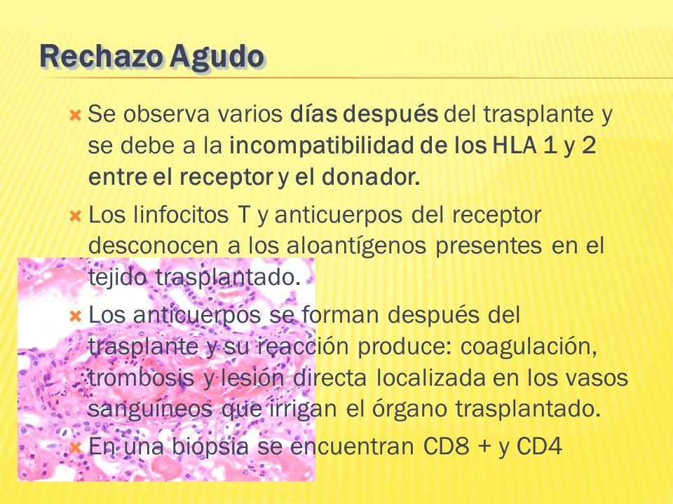 Rechazo Agudo Se observa varios días después del trasplante y se debe a la incompatibilidad de los HLA 1 y 2 entre el receptor y el donador.