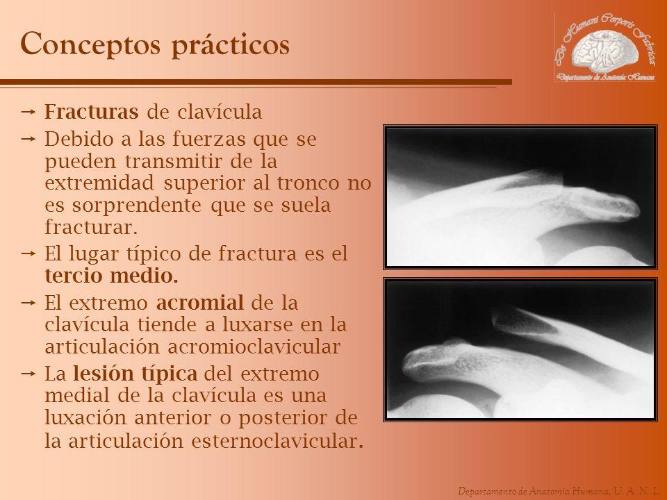 Conceptos prácticos Fracturas de clavícula