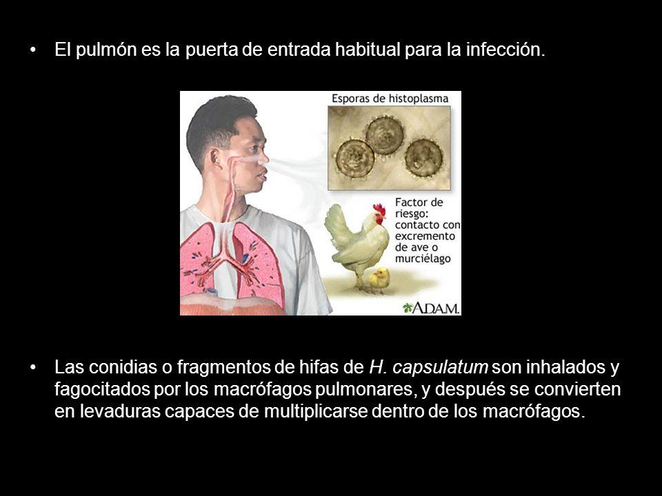El pulmón es la puerta de entrada habitual para la infección.