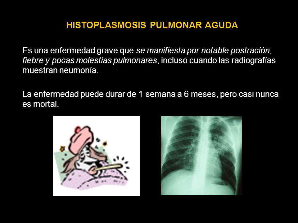 HISTOPLASMOSIS PULMONAR AGUDA
