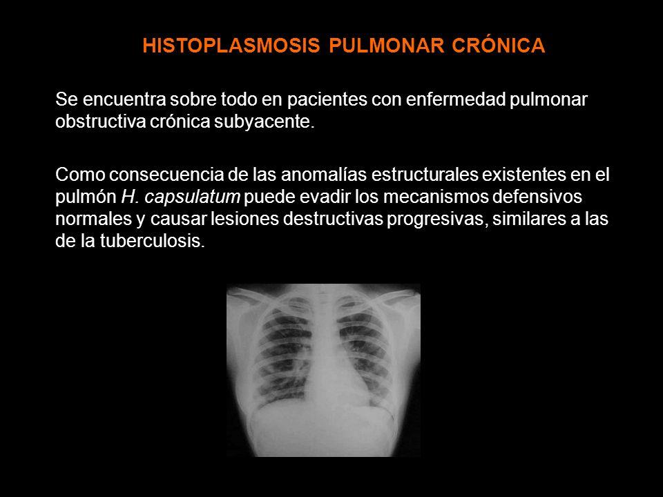 HISTOPLASMOSIS PULMONAR CRÓNICA