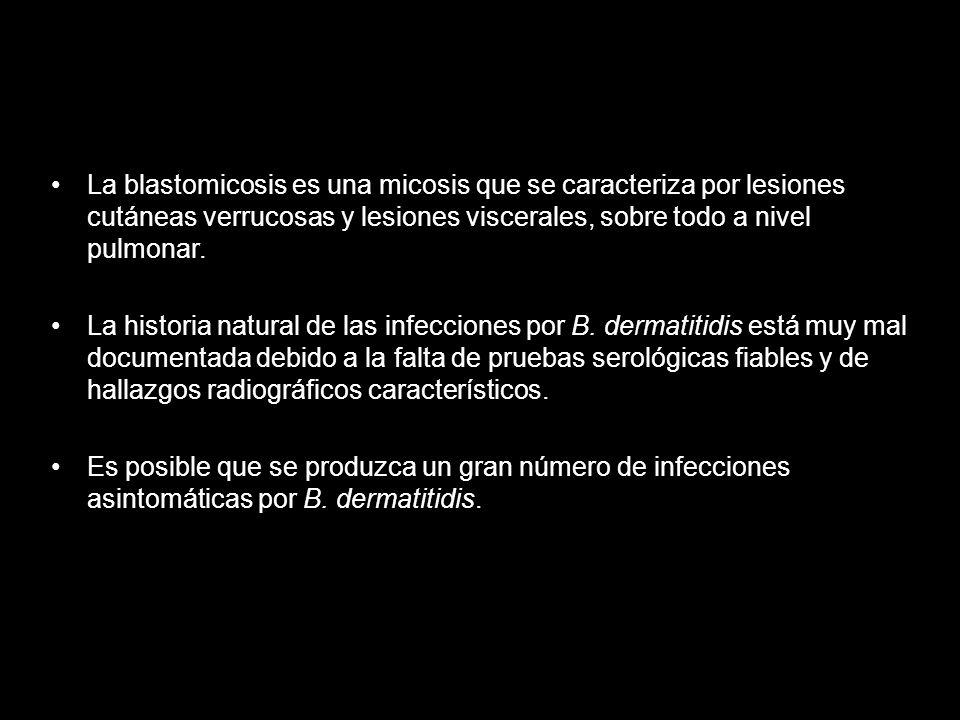 La blastomicosis es una micosis que se caracteriza por lesiones cutáneas verrucosas y lesiones viscerales, sobre todo a nivel pulmonar.