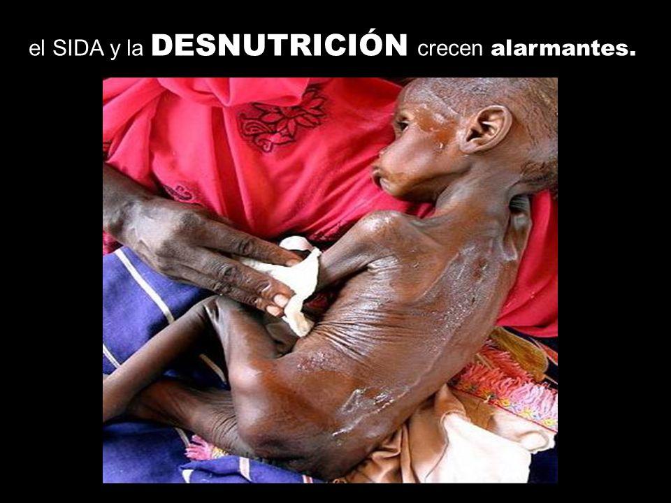 el SIDA y la DESNUTRICIÓN crecen alarmantes.