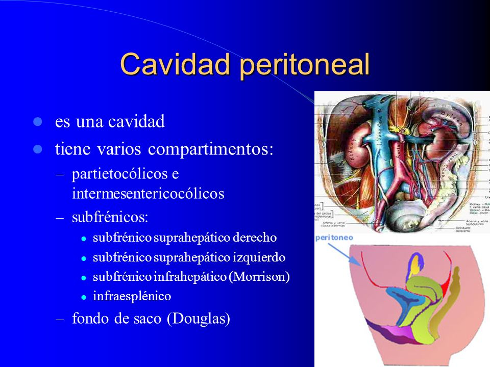 Cavidad peritoneal es una cavidad tiene varios compartimentos: