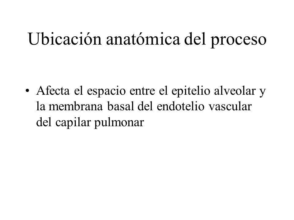 Ubicación anatómica del proceso