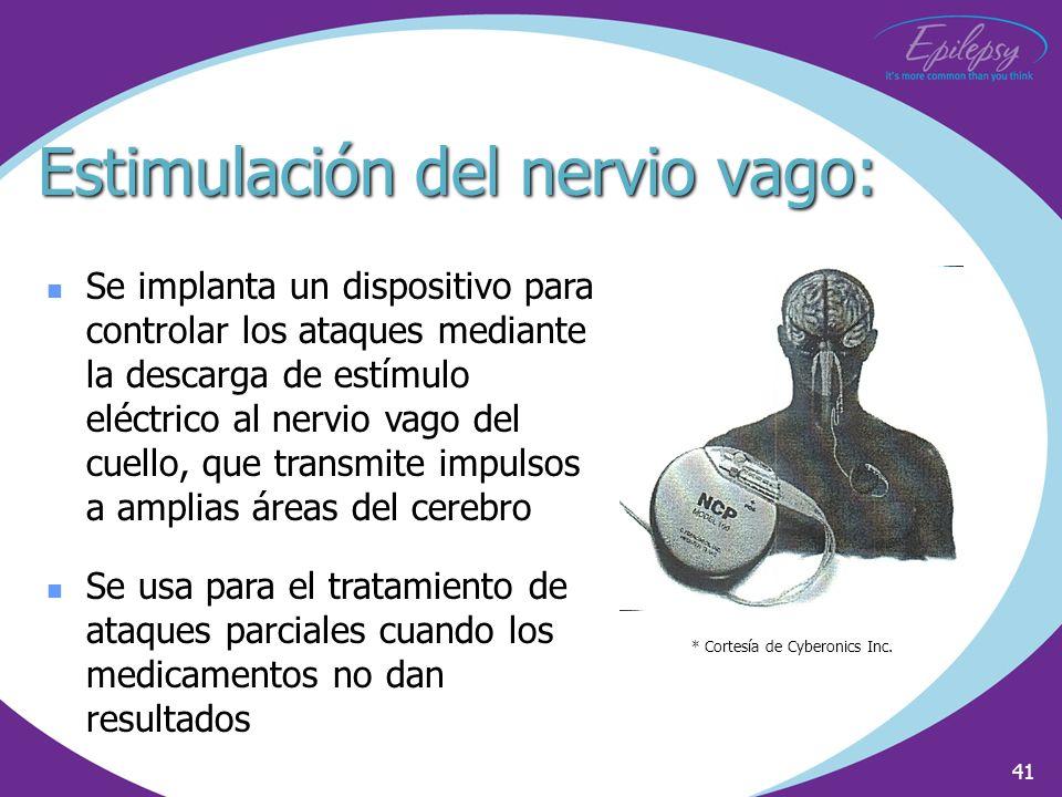 Estimulación del nervio vago: