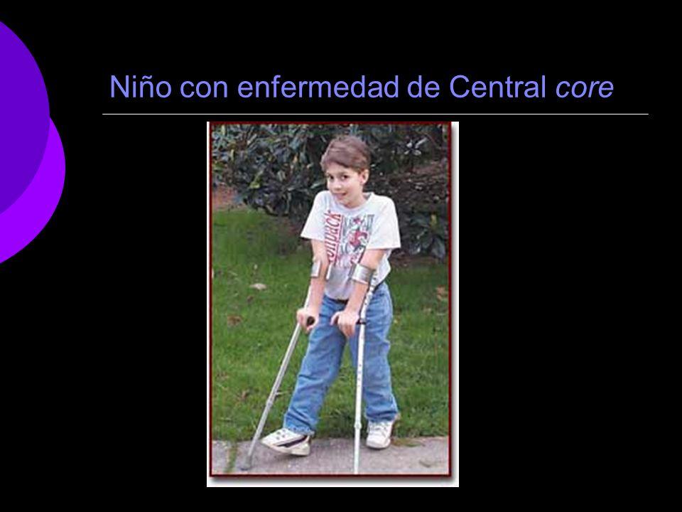 Niño con enfermedad de Central core