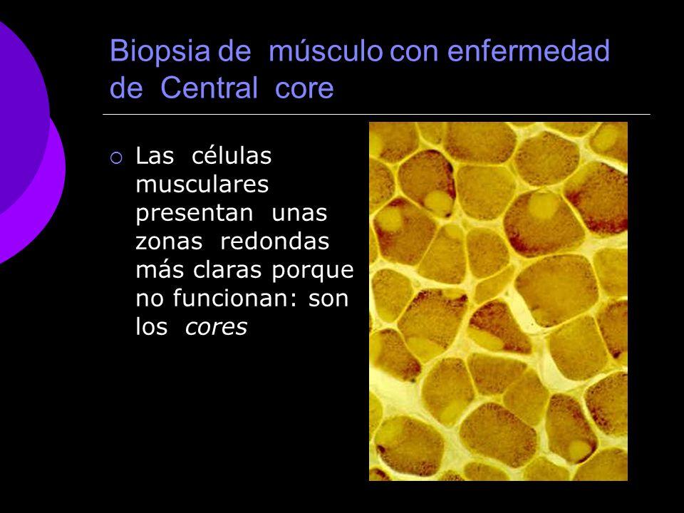 Biopsia de músculo con enfermedad de Central core