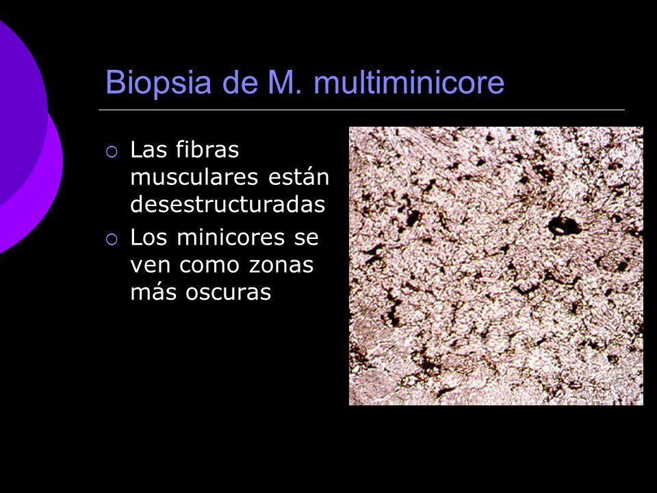 Biopsia de M. multiminicore
