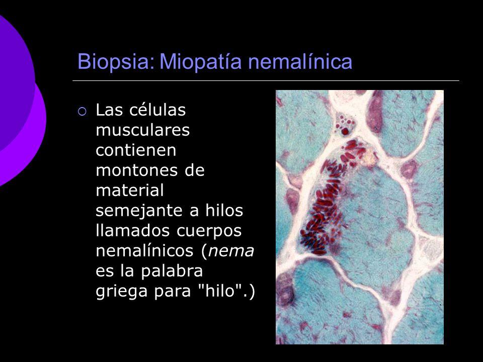 Biopsia: Miopatía nemalínica