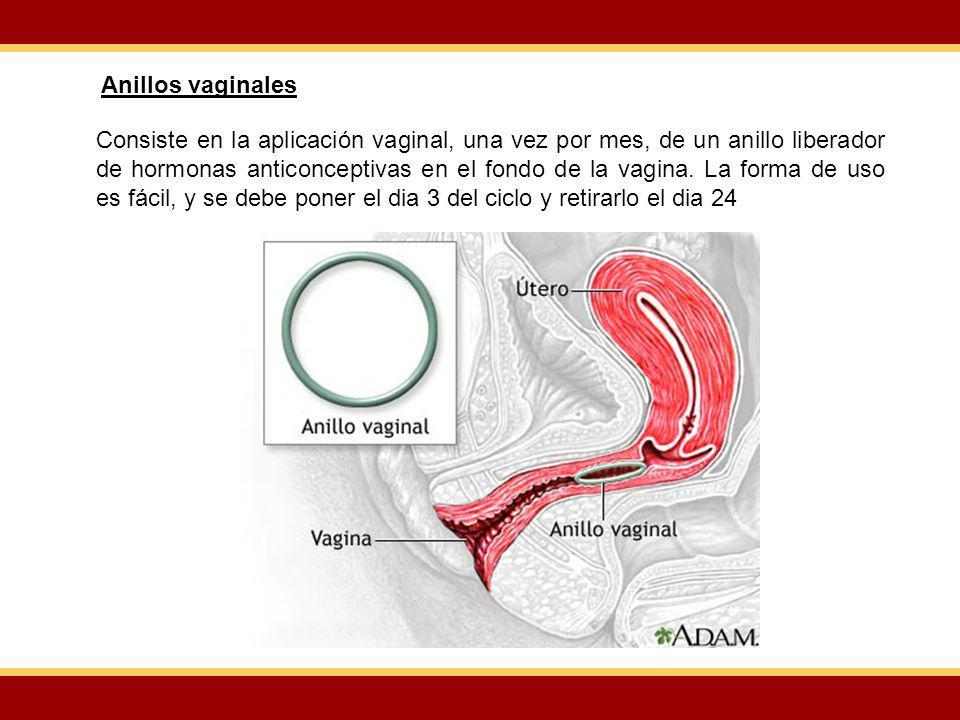 Anillos vaginales